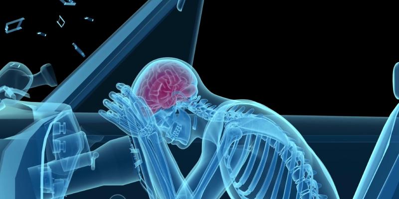 personal injury law - brain injury